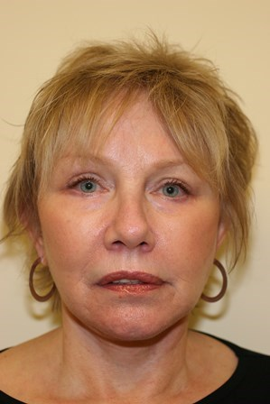 Portland Facelift After - 6 Month Post Op