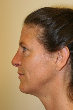 Portland Rhinoplasty After - 2 Month Post Op