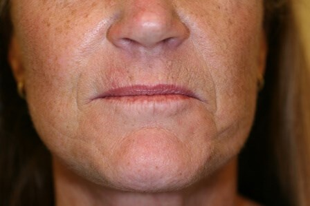 Portland Facelift After - 5 Month Post Op