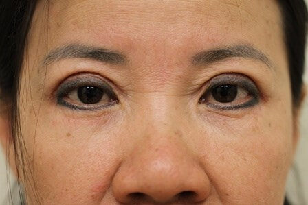 Portland Asian Eyelid Surgery After - 1 Year Post Op