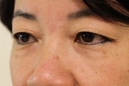 Portland Asian Eyelid Surgery Before