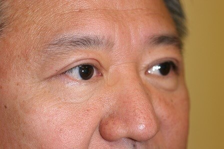 Portland Asian Eyelid Surgery After - 2 Month Post Op