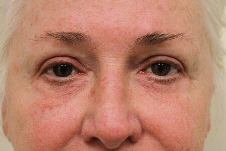 Portland Blepharoplasty After - 6 Month Post Op