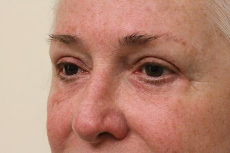 Portland Blepharoplasty After