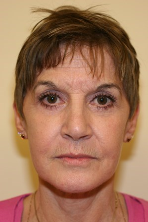 Portland Facelift After - 10 Month Post Op