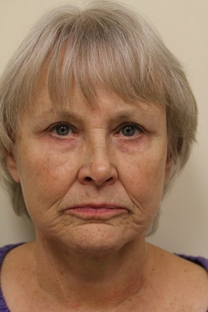 Portland Facelift After - 2 Month Post Op