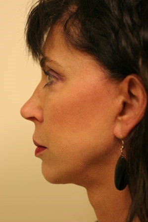 Portland Facelift After - 7 Month Post Op