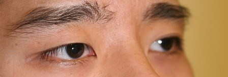 Asian Eyelid Surgery Before