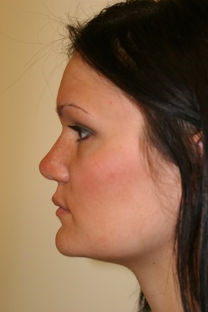 Portland Revision Rhinoplasty After - 4 Months Post Op