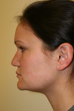 Portland Revision Rhinoplasty Before
