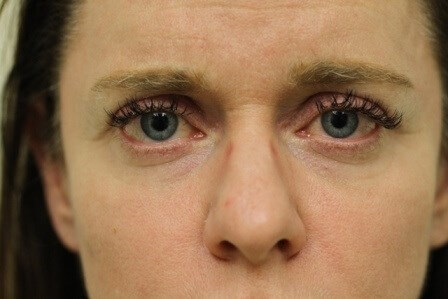 Portland Blepharoplasty After - 2 Months Post Op