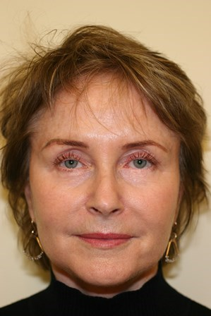 Portland Facelift After - 8 Months Post Op