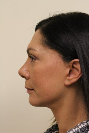 Portland Facelift After - 7 Months Post Op