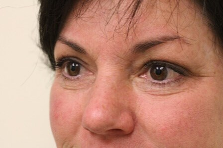 Portland Blepharoplasty After - 6 Months Post Op