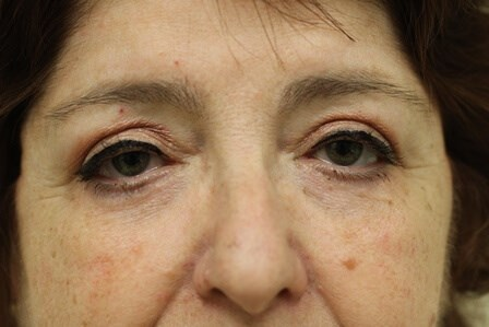 Portland Blepharoplasty After - 3 Months Post Op