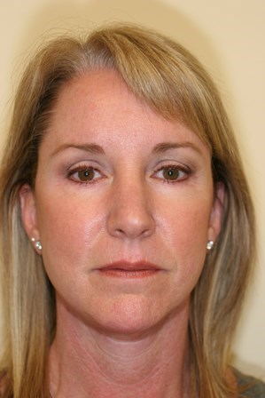 Portland Facelift After - 4 Months Post Op