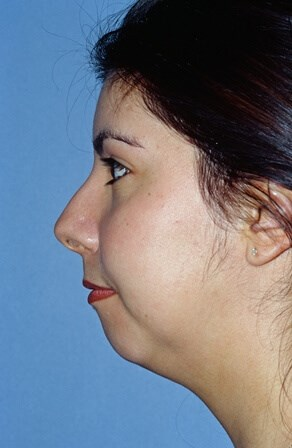 Portland Chin Augmentation Before