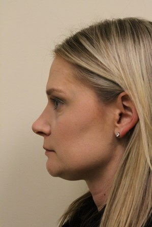 Portland Rhinoplasty After - 7 Month Post Op