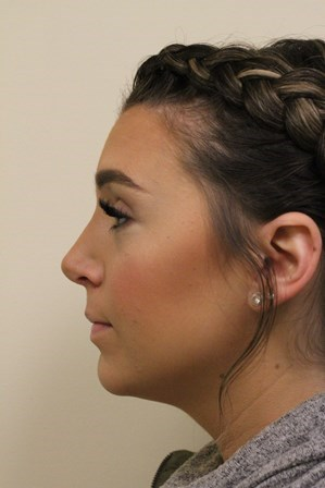 Portland Rhinoplasty After - 6 Month Post Op