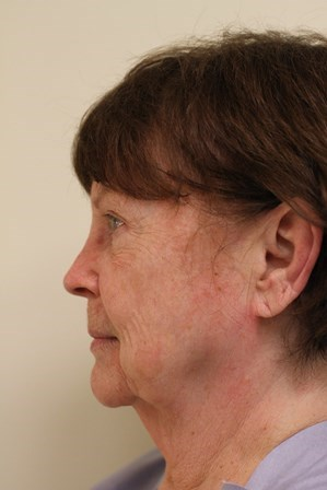 Portland Facelift Before - 1 Year Post Op