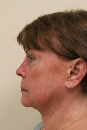 Portland Facelift After - 1 Year Post Op