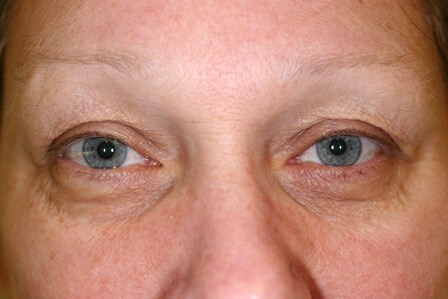 Portland Blepharoplasty Before - 4 Month Post Op