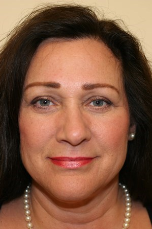 Portland Blepharoplasty After - 4 Month Post Op