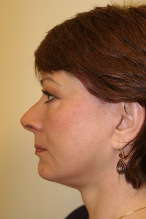 Portland Facelift After - 6 Months Post Op