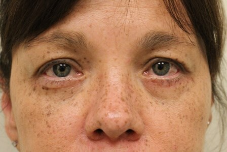 Portland Blepharoplasty After - 5 Months Post Op