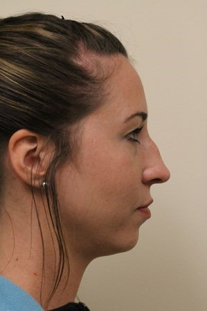 Portland Rhinoplasty Before