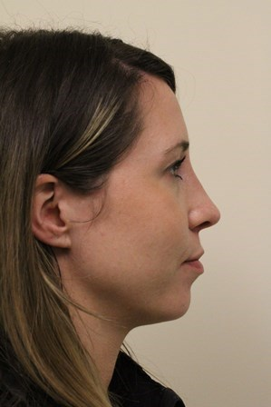 Portland Rhinoplasty After-2 Months Post Op
