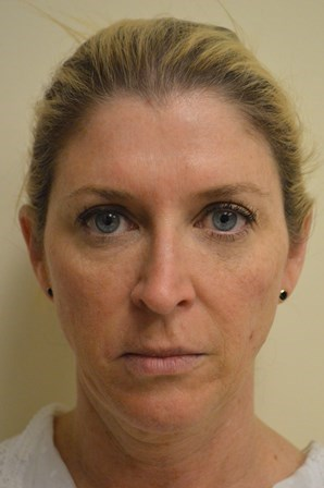 Portland Ultherapy Full Face Before
