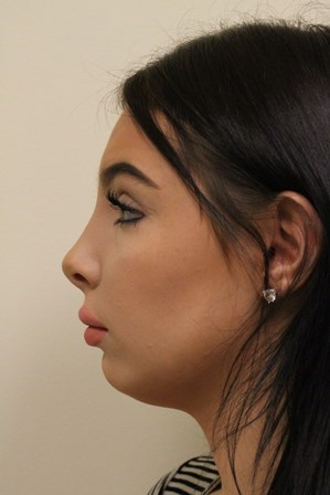 Portland Rhinoplasty After - 3 Months Post Op