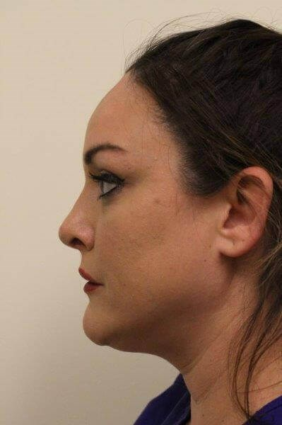 Portland Rhinoplasty After - 2 Months Post Op