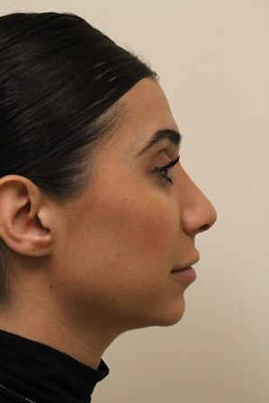 Portland Rhinoplasty After - 6 Months Post Op