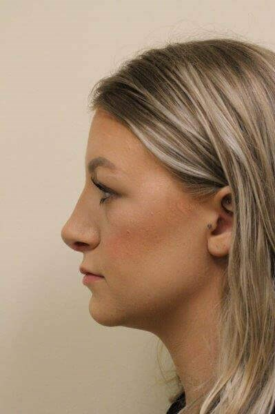 Portland Rhinoplasty After - 1 Week Post Op