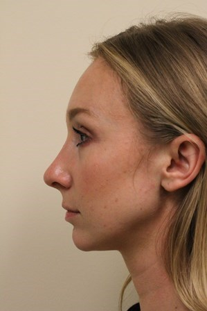 Portland Rhinoplasty After - 2 Months Po Op