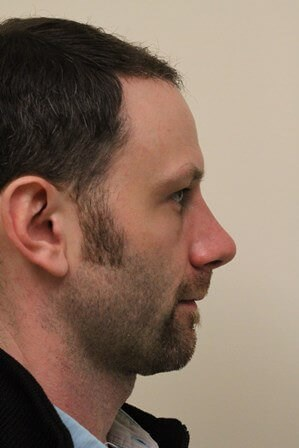Portland Rhinoplasty After - 1 Month Post Op